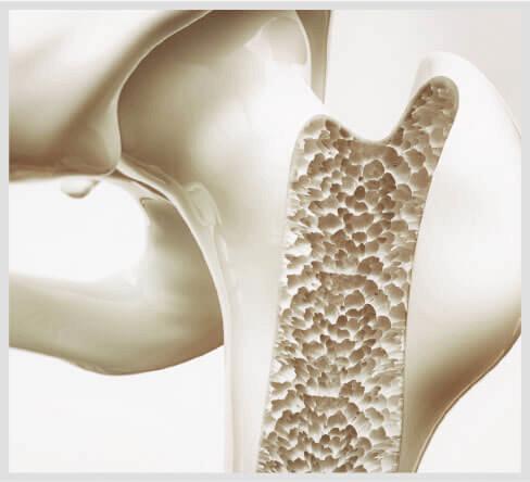 Calcium Corrosion